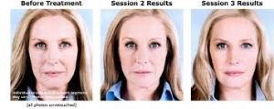 Sculptra Before and After 1